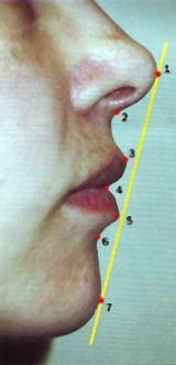 Красивые губы: эстетическая линия Риккетса