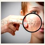 Отзыв о курсе lpg-массажа для лица